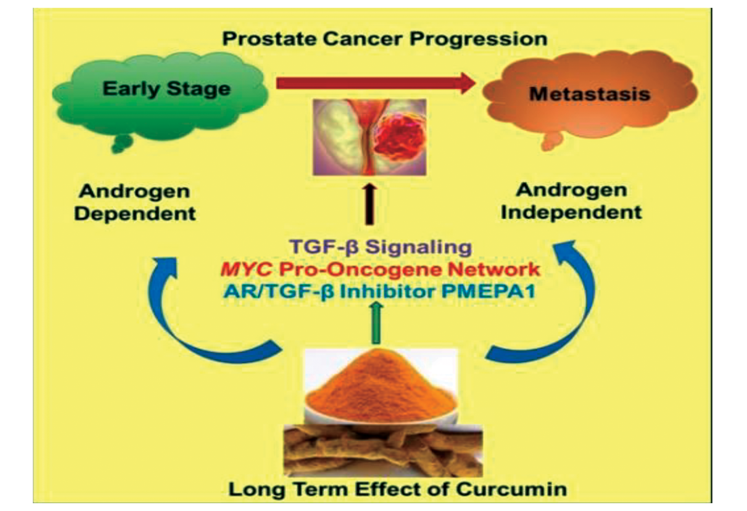 Prostate Cancer Progression