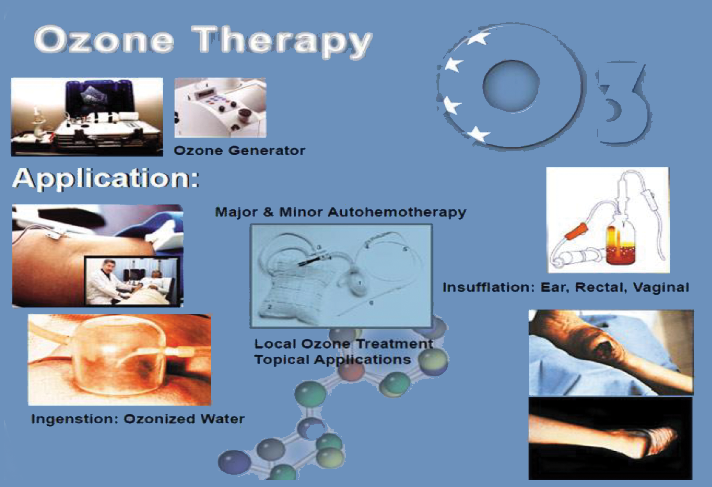 ozone_therapy
